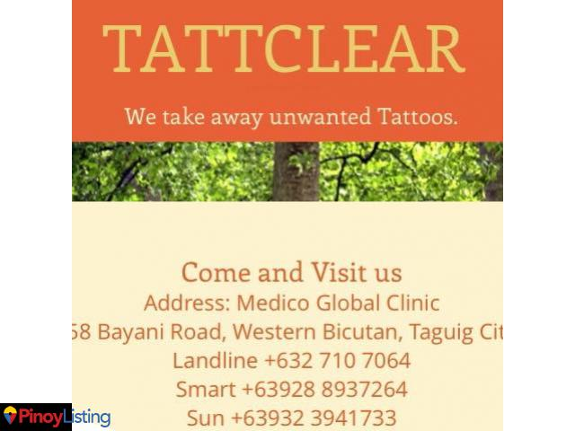 Tattclear Manila- Tattoo Removal Clinic