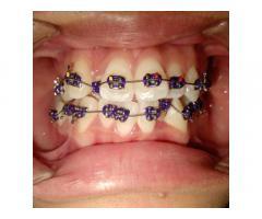Affordable Dental Braces by E.L.T dental clinic