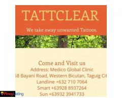 Tattclear - Tattoo Removal Clinic - Taguig City